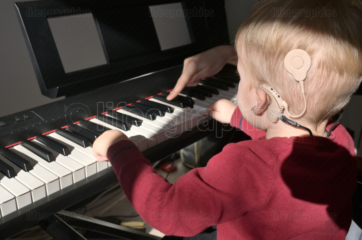 A Boy With A Hearing Aids And Cochlear Implants Playing
