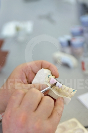 Dentist showing dental cast