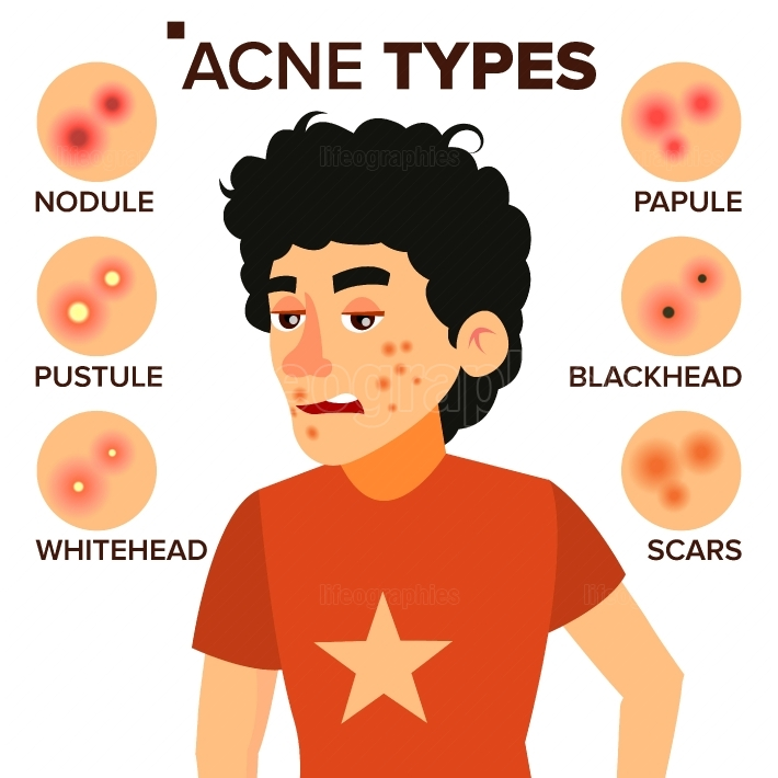Acne Types Vector  Boy With Acne  Pimples, Wrinkles, Dry Skin, Blackheads  Isolated Flat Cartoon Character Illustration