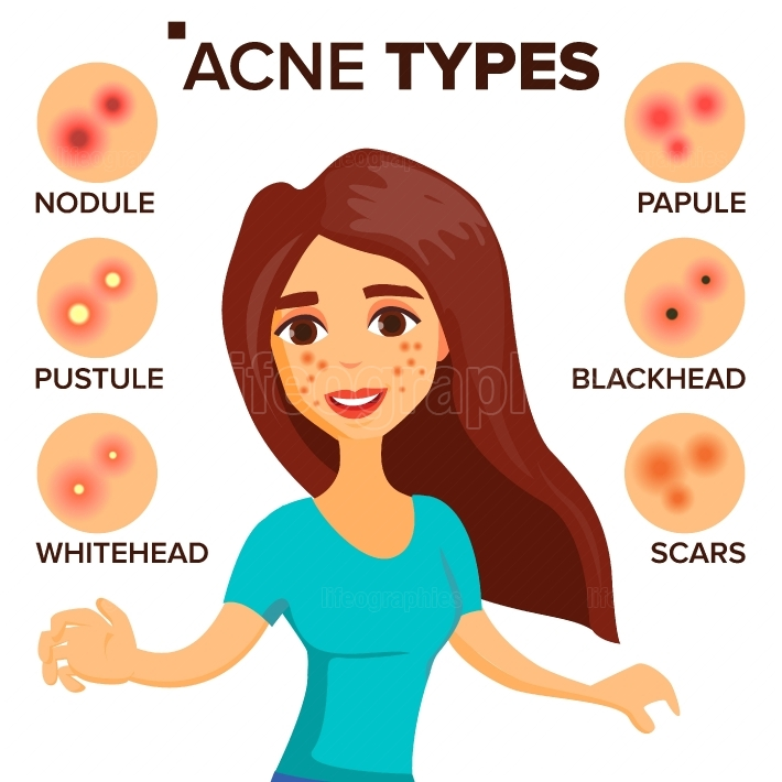Acne Types Vector  Girl With Acne  Skin Care  Treatment, Healthy  Nodule, Whitehead  Isolated Flat Cartoon Character Illustration