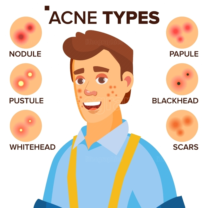 Acne Types Vector  Man With Acne  Facial Skin Problems  Papule, Pustulem Scards  Isolated Flat Cartoon Character Illustration